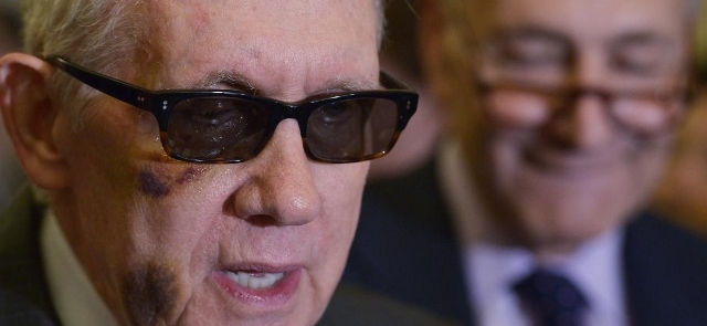 Harry Reed with Black Eye, Photo: nydailynews.com